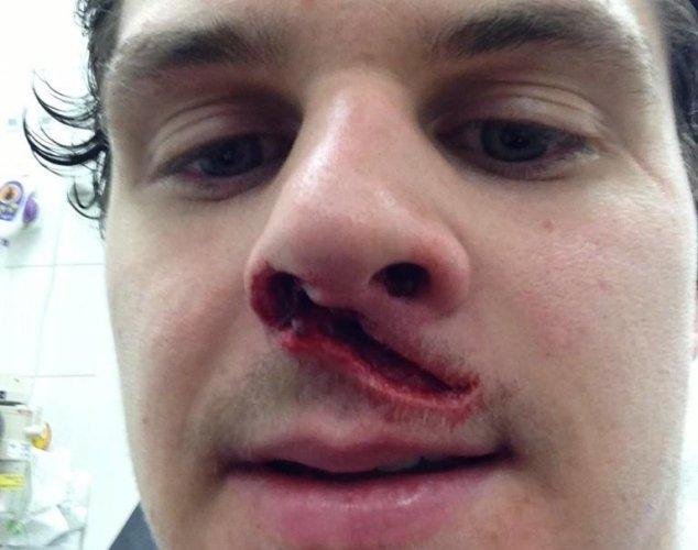 50 sport injured1121812684