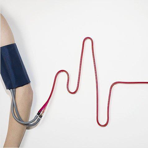 сердечная активность